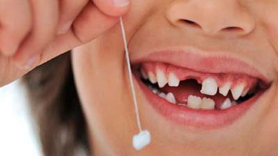 Dental Stem Cell Banking