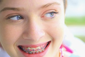 Pediatric Dental 101 : Braces and Their Types