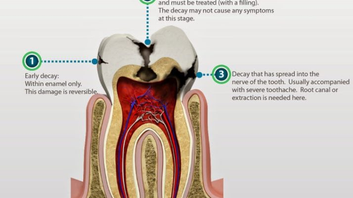Root Canal Treatment for Baby Teeth – Pulpectomy