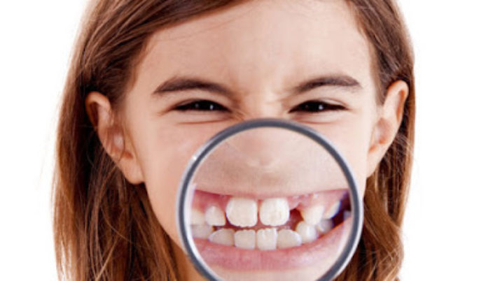 Process of Dental Caries in Children