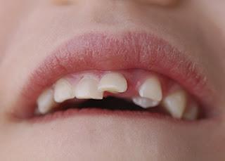 Dental Emergencies – DENTAL IMPACTION