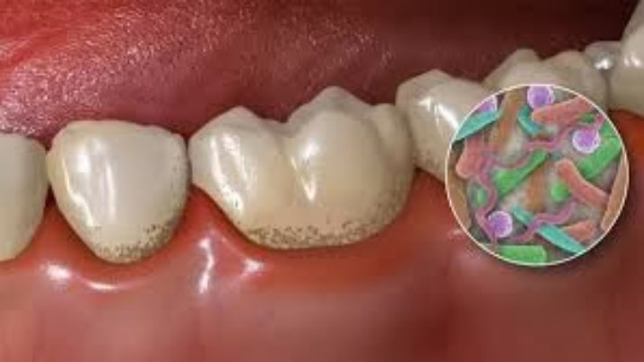 Is Dental Decay Contagious?