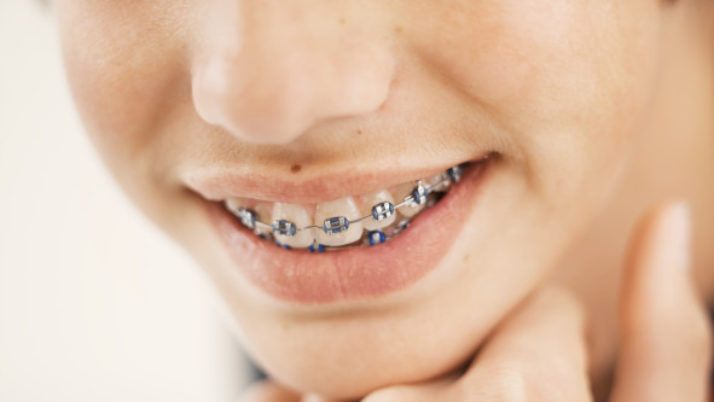 Correcting Misaligned Teeth with Dental Braces